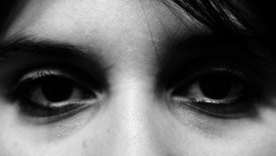 صورة كيف تتخلصين من الهالات السوداء تحت العين نهائيا؟
