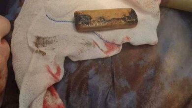 صورة بالصور.. استخراج هاتف محمول من معدة مواطن مصري ابتلعه منذ 6 أشهر